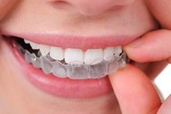 seffaf-plak-ortodontik-tedavi