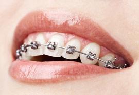 ortodonti uzmani - kapakli braketler bagdat caddesi