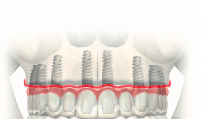 6 ya da daha fazla implant destekli sabit protez
