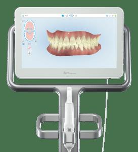 ortodontik tedavi sonrasi dislerin gorunumu - itero scanner