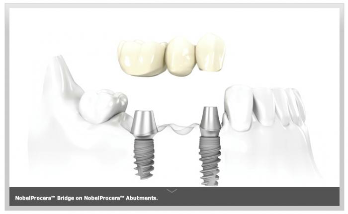 coklu dis eksikliklerinde uygulanan implantlar