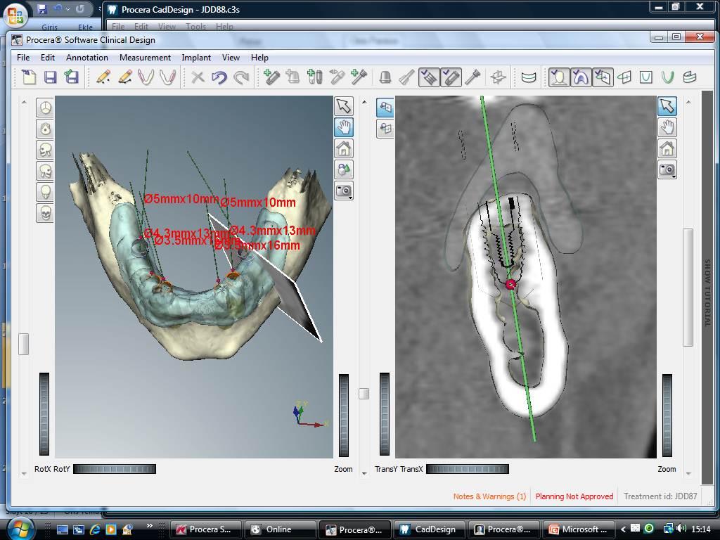 nobel biocare implant bagdat caddesi