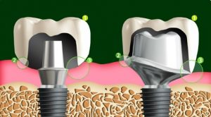 implant fiyatlari bagdat caddesi sonodent
