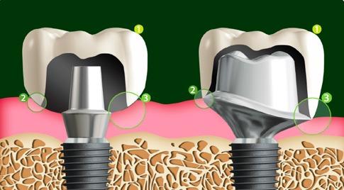 implant sozlugu - dental implant terimleri