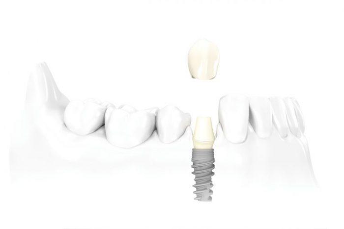 tek dis eksikliginde uygulanan implant