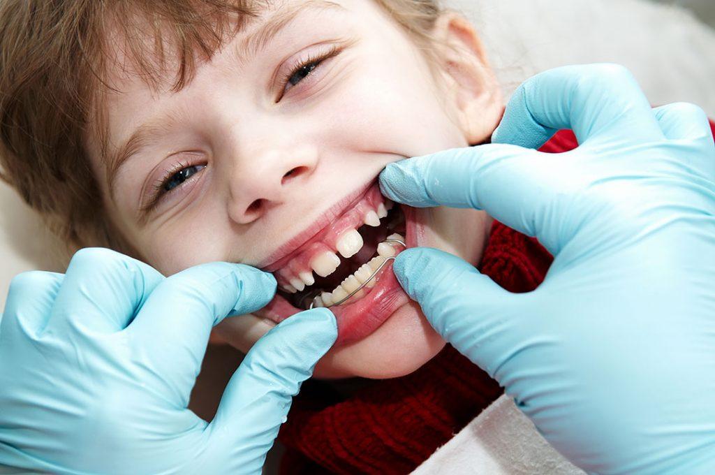 karisik dislenme donemi pedodonti ortodonti bagdat caddesi kadikoy