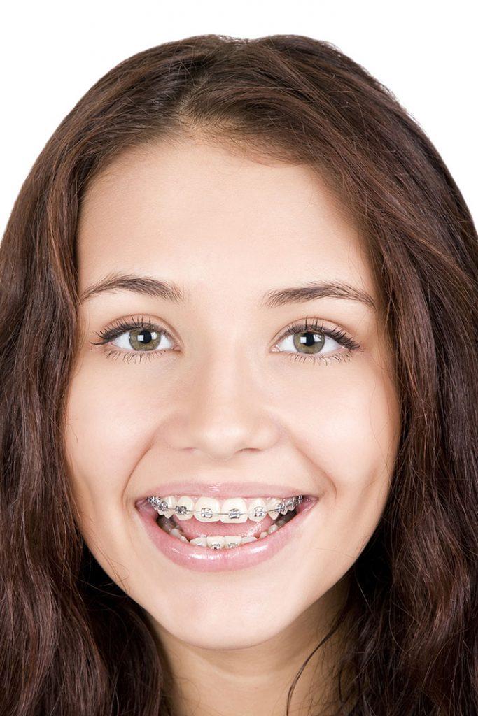 surekli dislenme doneminde ortodontik tedavi sonodent dis klinigi bagdat caddesi