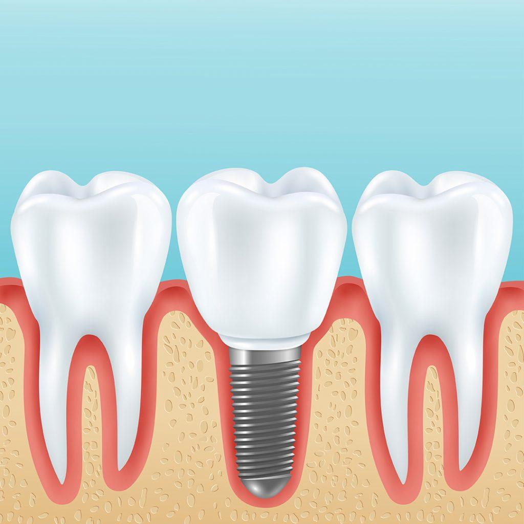 implantlar hakkinda sikca sorulan sorular - sonodent dis klinigi